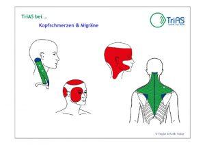 Triggerpunkte in der Muskulatur